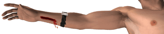 Tourniquet Applied on Arm